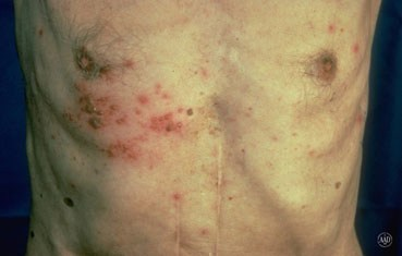 Shingles on man's chest
