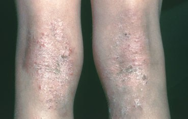 eczema on backs of knees