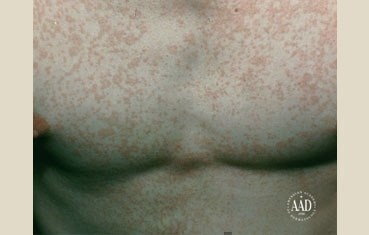 tinea versicolor on chest