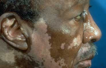 black man with vitiligo