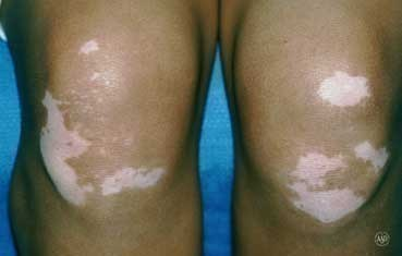 vitiligo on the knees
