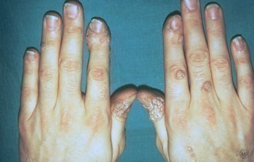 warts on hands