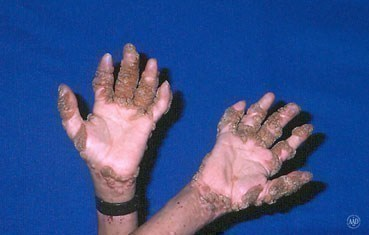 widespread warts on hands
