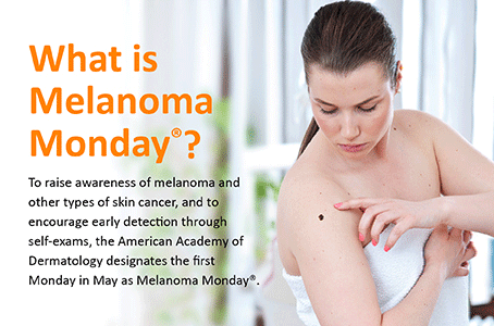 melanoma-monday-landing-page-after-lower-image.png