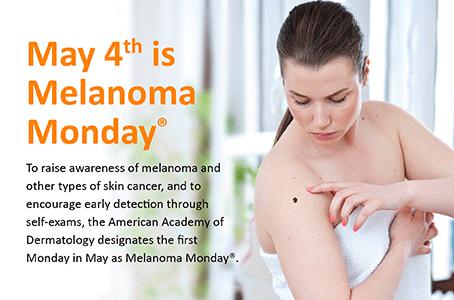 melanoma-monday-landing-page-before-lower-image.png