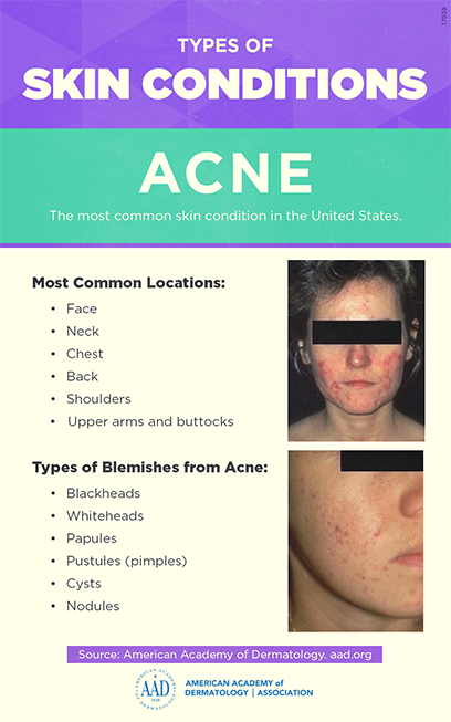 Acne---infographic_sm.png