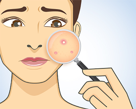 How To Treat Different Types Of Acne American Academy Of Dermatology