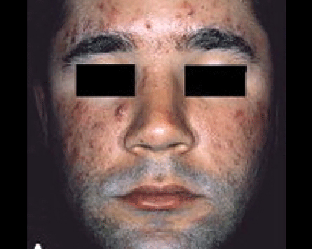 How To Treat Different Types Of Acne American Academy Of