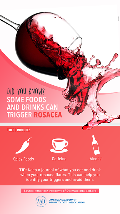 Rosacea-Triggers---infographic_sm.png