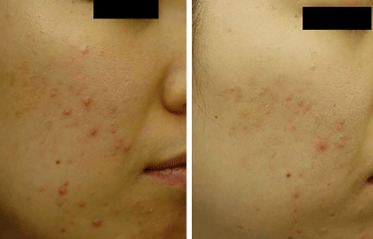 Lasers And Lights How Well Do They Treat Acne American Academy
