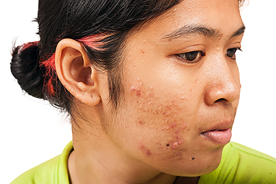How long can I take an antibiotic to treat my acne? | American