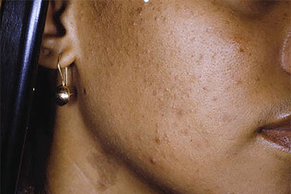 10 tips for clearing acne in skin of color | American Academy of
