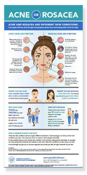 Is that acne or rosacea on your skin? | American Academy of