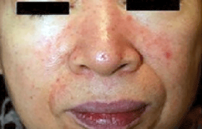Is that stubborn acne really acne? | American Academy of