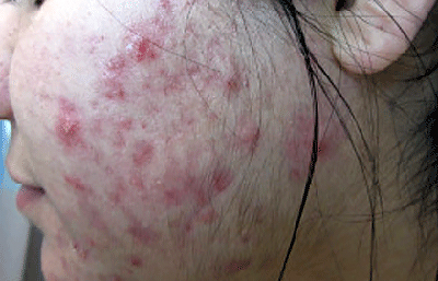 acne-polycystic-ovary-syndrome.jpg