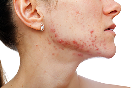 What can clear severe acne? | American Academy of Dermatology