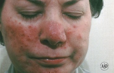 Rosacea | American Academy of Dermatology