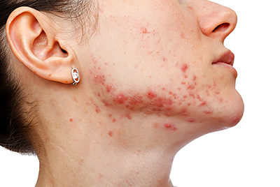 Stubborn Acne Hormonal Therapy May Help