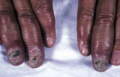 Sarcoidosis and your skin | American Academy of Dermatology