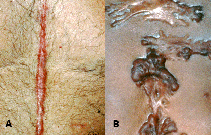 Keloids American Academy Of Dermatology