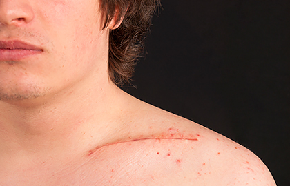 Scars | American Academy of Dermatology