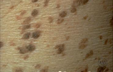Seborrheic keratoses | American Academy of Dermatology