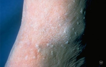 seborrheic-keratosis-symptoms-raised-bumps.jpg