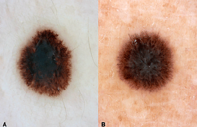 spitz-nevus-melanoma.jpg