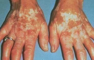 Vitiligo | American Academy of Dermatology