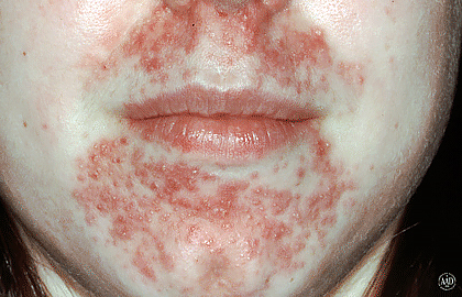 rash with spots on face