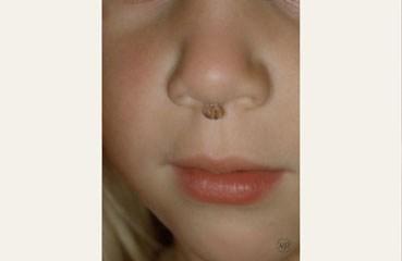 Warts | American Academy of Dermatology
