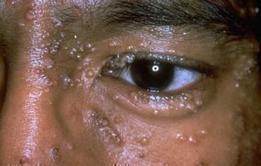 molluscum contagiosum | american academy of dermatology, Human Body
