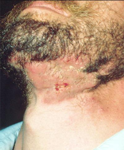 Ringworm of the Scalp or Beard | Health Encyclopedia ...