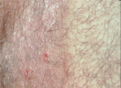 Ringworm | American Academy of Dermatology