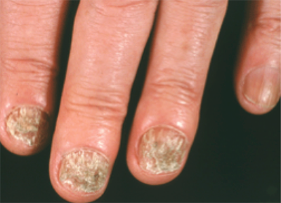 Ringworm | American Academy of Dermatology