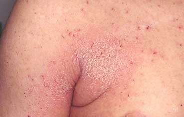 Scabies: Treatment and Scabies Rash Facts - MedicineNet