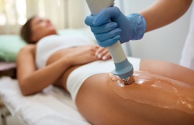 Cellulite Acoustic Wave Therapy