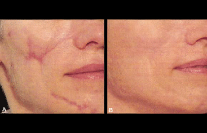 Facial laser procedure