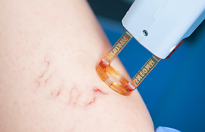 vein-laser-light-treatment.jpg