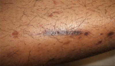 # Diabetic Skin Conditions Pictures - Prevention Of Type 2 ...