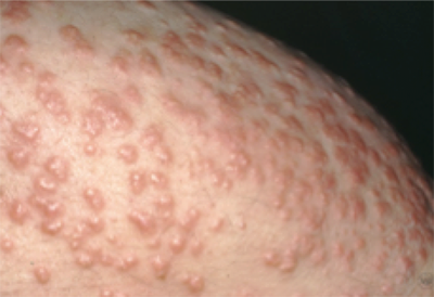 Diabetes: 12 warning signs that appear on your skin
