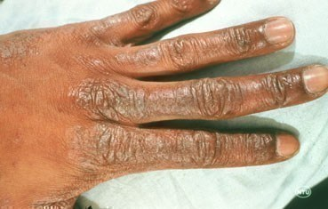 patches of peeling skin on hands