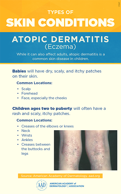 Atopic dermatitis | American Academy of Dermatology