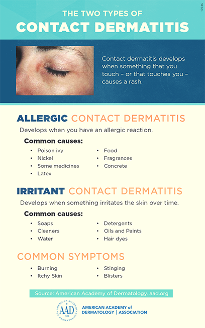 Contact dermatitis | American Academy of Dermatology
