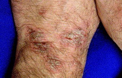 eczema on wrist treatment