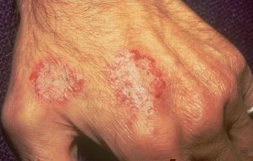 Nummular dermatitis | American Academy of Dermatology