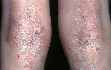 severe-atopic-dermatitis-knees.jpg