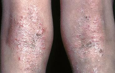 Atopic dermatitis   American Academy of Dermatology
