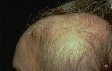 Alopecia areata | American Academy of Dermatology