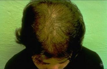Hair loss | American Academy of Dermatology
